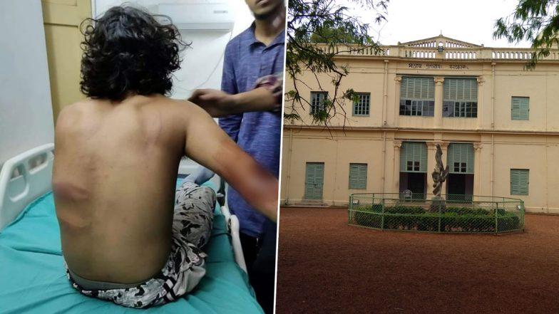 Attack On Visva Bharati Students: জেএনইউ-র ছায়া বিশ্বভারতী বিশ্ববিদ্যালয়ে, হোস্টেলের বাইরে ছাত্রদের রড-লাঠি দিয়ে মার বিজেপির