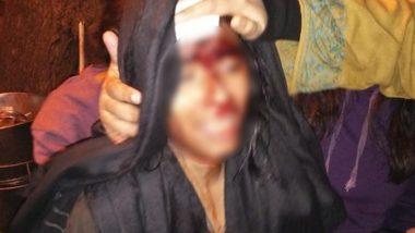 Violence In JNU: JNU ক্যাম্পাসে হামলা 'ABVP'-র , মাথা ফাটল ছাত্র সংসদের সভাপতি ঐশী ঘোষের