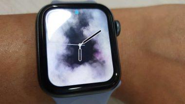 Apple Watch Saves A Life Of Teen Athlete: কিশোরের প্রাণ বাঁচাল অ্যাপল ঘড়ি, কেন জানেন?