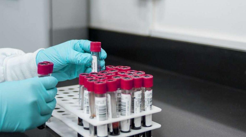 Global COVID-19 Cases: বিশ্বজুড়ে করোনা আক্রান্তের সংখ্যা ৪০ লক্ষ ৪৪ হাজার ছাড়ালো, মৃত্যুমিছিলে শামিল ৩ লক্ষ ২০ হাজার